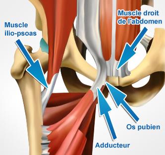 anatomie-pubalgie-muscle-ilio-psoas-grand-droit-os-pubien-adducteur