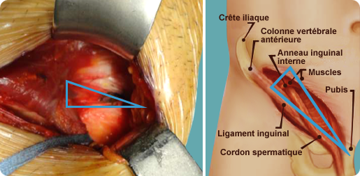 chirurgie-pubalgie-paris-dr-reboul-technique-shouldice-modifie