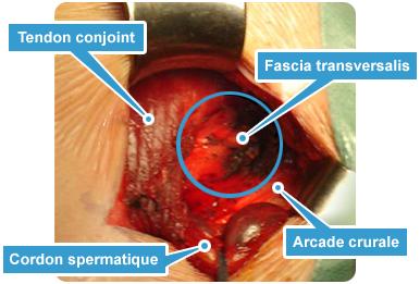 chirurgie-pubalgie-technique-shouldice-modifie
