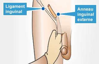 douleurs irradiées a la hanche