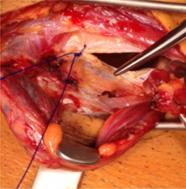 indication-chirurgicale-pubalgie-parieto-abdominale