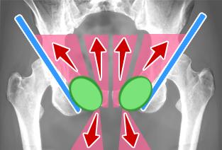 principe-traitement-chirurgicale-pubalgie-parieto-abdominale